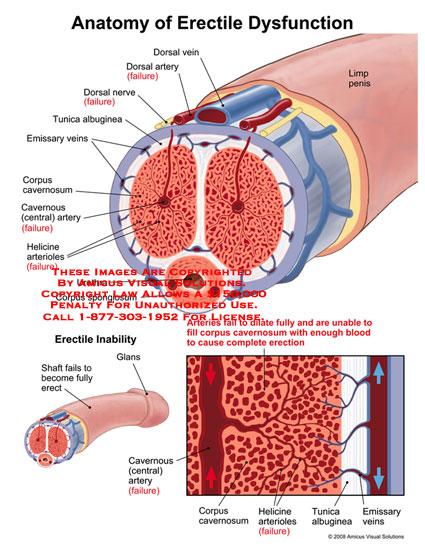 07095_03C) Anatomy of Erectile Dysfunction – Anatomy Exhibits