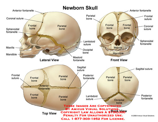 08007_04X) Newborn Skull – Anatomy Exhibits