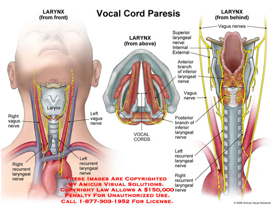 how to cut vocal cords