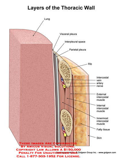 08060_02X) Layers of the Thoracic Wall – Anatomy Exhibits