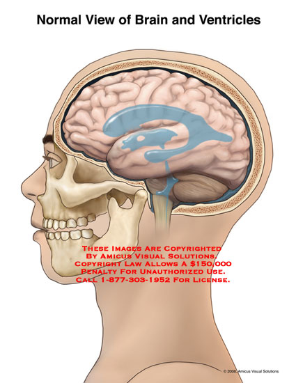 (08101_06X) Normal View of Brain and Ventricles - Anatomy ...