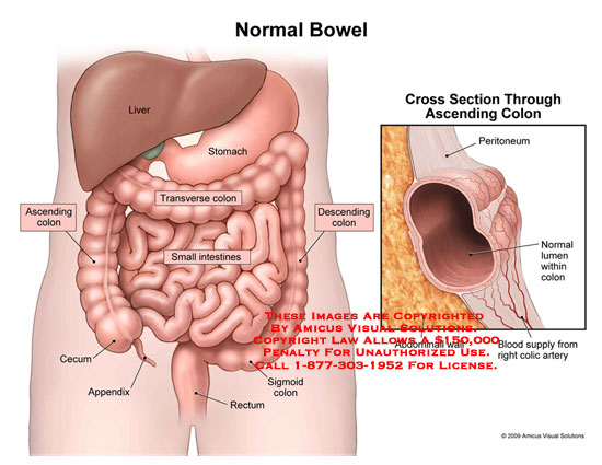 09125_01X) Normal Bowel – Anatomy Exhibits