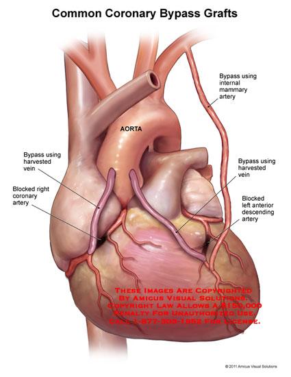 11095_05X) Common Coronary Bypass Grafts – Anatomy Exhibits