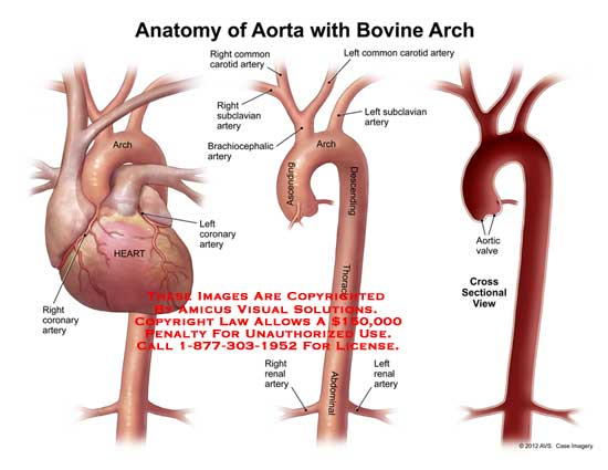 1117911x Anatomy Of Aorta With Bovine Arch Anatomy Exhibits