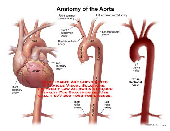 aorta – Anatomy Exhibits