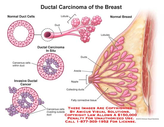 Stage 1 Breast Cancer In Milk Duct Should We Screen For