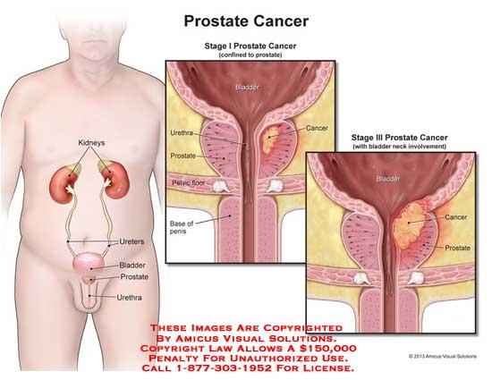 13154_01X) Prostate Cancer – Anatomy Exhibits
