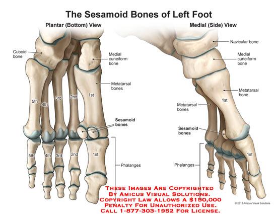 1324501x The Sesamoid Bones Of Left Foot Anatomy Exhibits