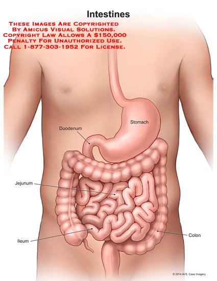 1401701x Intestines Anatomy Exhibits