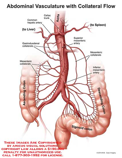 14190_01B) Abdominal Vasculature with Collateral Flow – Anatomy Exhibits