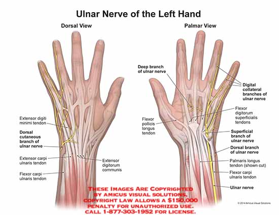 1505101x Ulnar Nerve Of The Left Hand Anatomy Exhibits