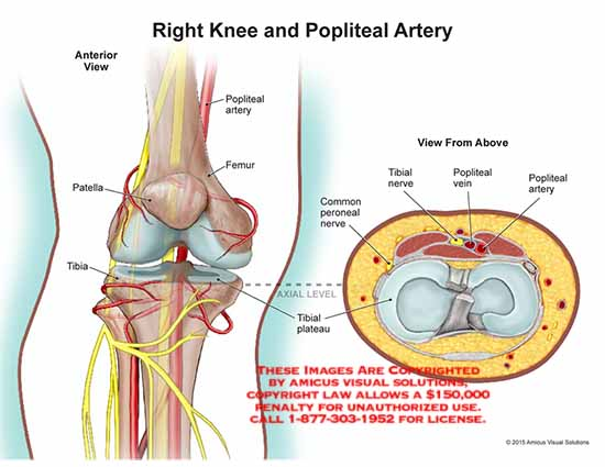 15074_01X) Right Knee and Popliteal Artery – Anatomy Exhibits