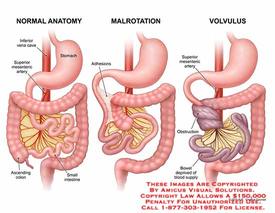 diagram of volvulus diagram of cecal volvulus injury – anatomy exhibits