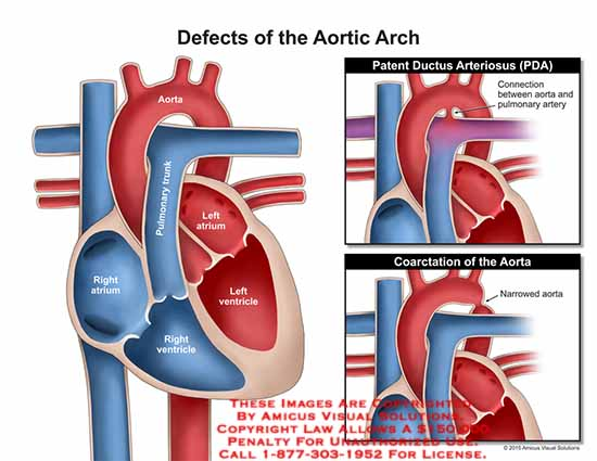15198_01X) Defects of the Aortic Arch – Anatomy Exhibits