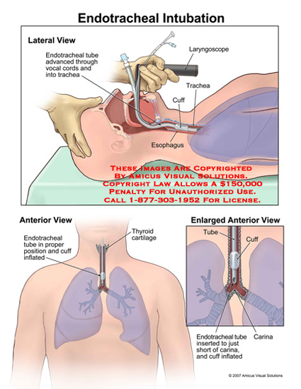 07001 02x endotracheal intubation anatomy exhibits